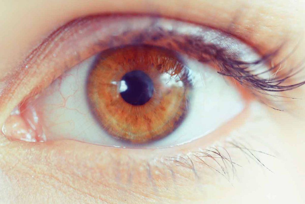 Inflammation of the cornea - LMEC