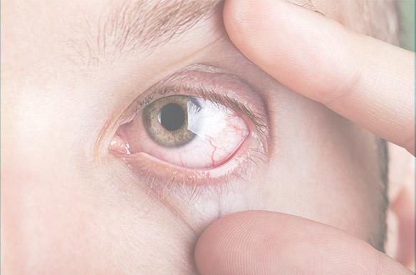 Dry Eye Center of Excellence - slider 2-mobile